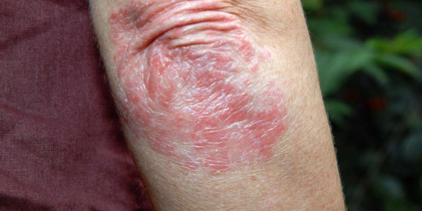 Psoriasis vs  folliculitis: Symptoms and causes | Family