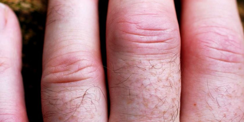 Psoriatic Arthritis In The Hands Symptoms Pictures And Treatment Family Health Tale
